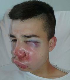 Le jeune Sofiane 16 ans, a ete victime d'un tir de flash-ball, dimanche soir a Compiegne affirme sa famille