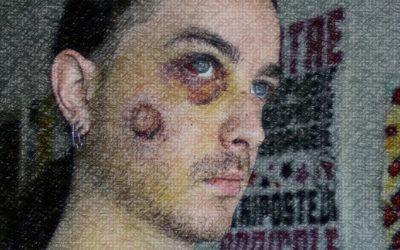 Entretien avec Yann Zoldan, gravement blessé à Toulouse le 21 avril 2014