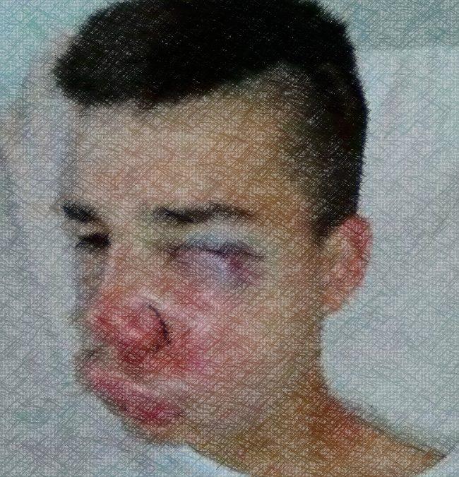 Sofiane Haicheur, blessé au visage le 10 juillet 2016 à Compiègne