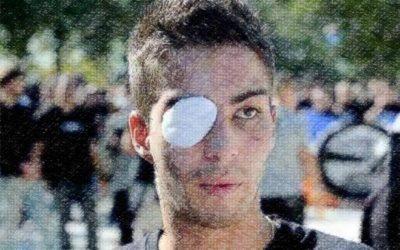 Des nouvelles de Casti, éborgné à Montpellier le 21 septembre 2012