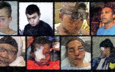 Mise à jour du tableau des personnes mutilées par des armes de police