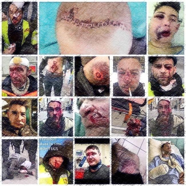 Recensement provisoire des blessé-es des manifestations de Gilets Jaunes