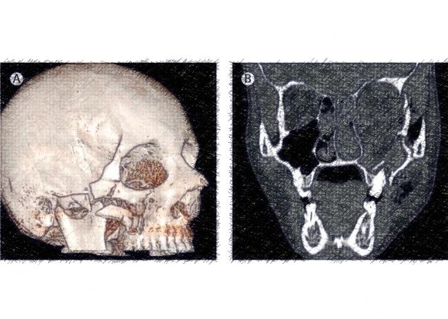 """Les ravages des """"balles de défense"""" autopsiés par des ophtalmologistes"""