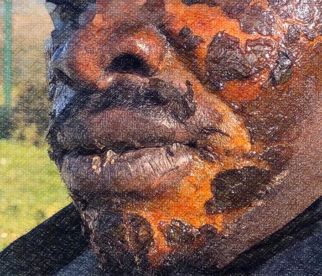 Barbarie policière à Calais : gestion migratoire à coup de gaz-poivre, l'humanité à l'épreuve du confinement